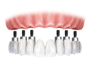 Dental-Implant-FIXED-OPTION-