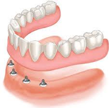 implant-overdenture-OPTION-1